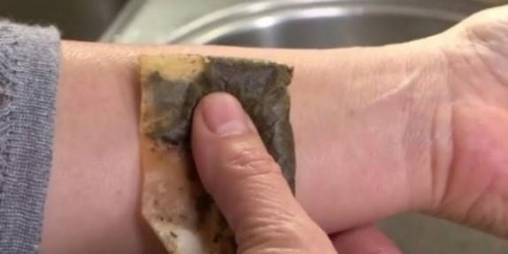 φακελάκι τσαγιού κατά τσιμπημάτων